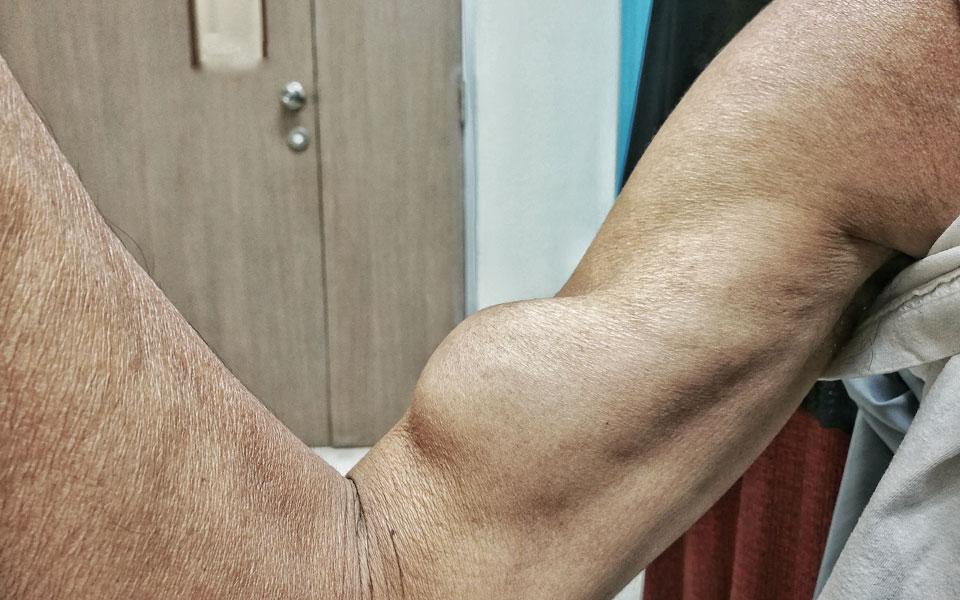 Distal bicep ruptures