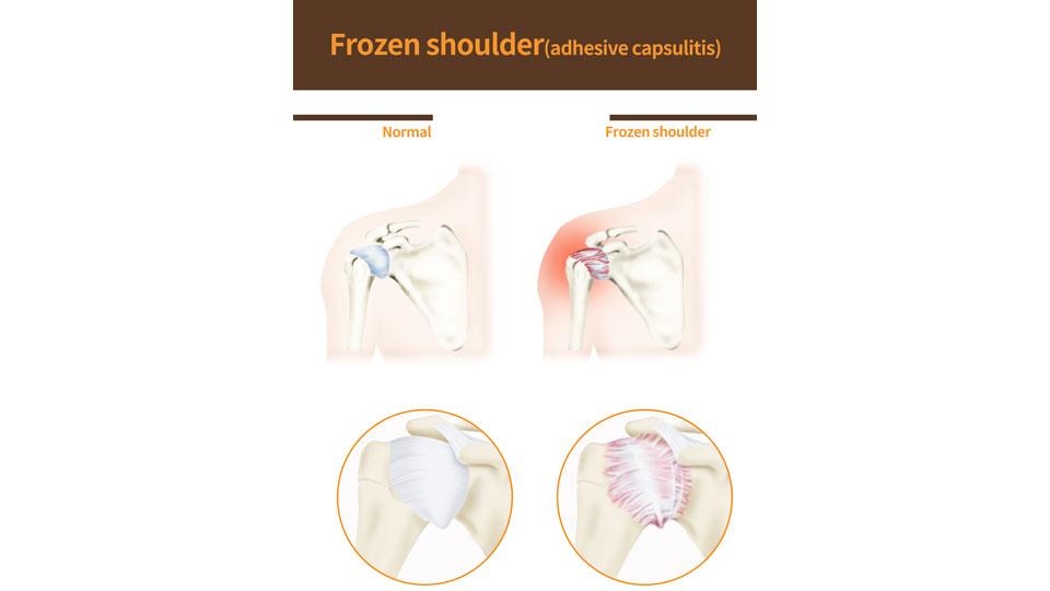 """""""Frozen Shoulder"""" (Adhesive capsulitis)"""