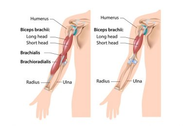 Long head biceps tendinopathy