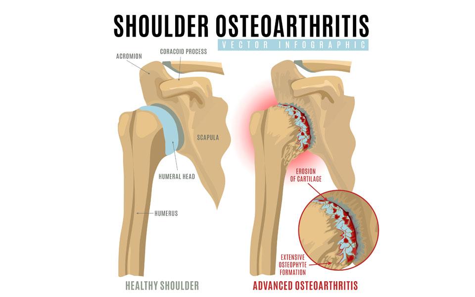 Shoulder Osteoarthritis (Glenohumeral joint, Acromio-claivcular joint)