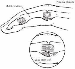Volar plate injuries