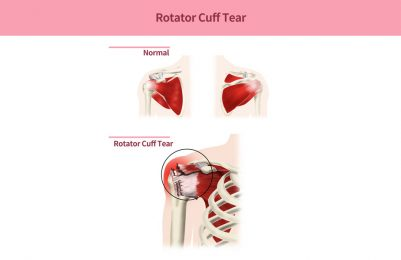 Rotator cuff tears - partial, full thickness