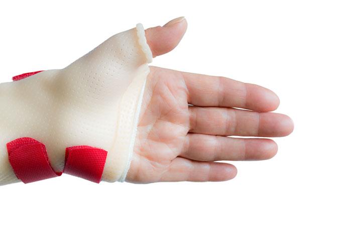 Splints and Braces