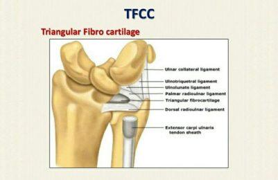 Triangular fibrocartilage complex (TFCC) injuries
