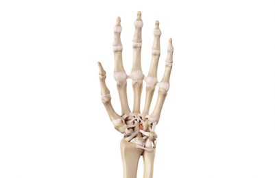 Wrist ligament injuries