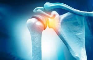 Adhesive Capsulitis What Treatments Available